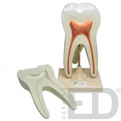 """Модель """"Будова зуба людини"""""""