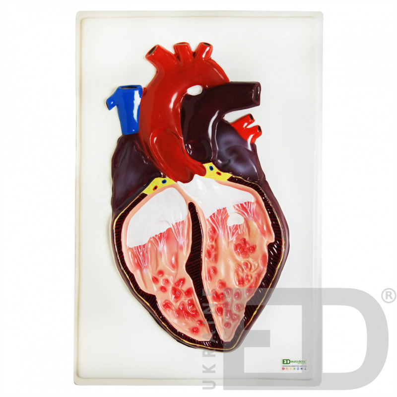 "Барельєфна модель ""Будова серця людини"""